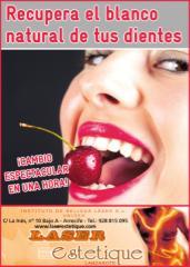 Blanqueamiento Dental_Lanzaroten-