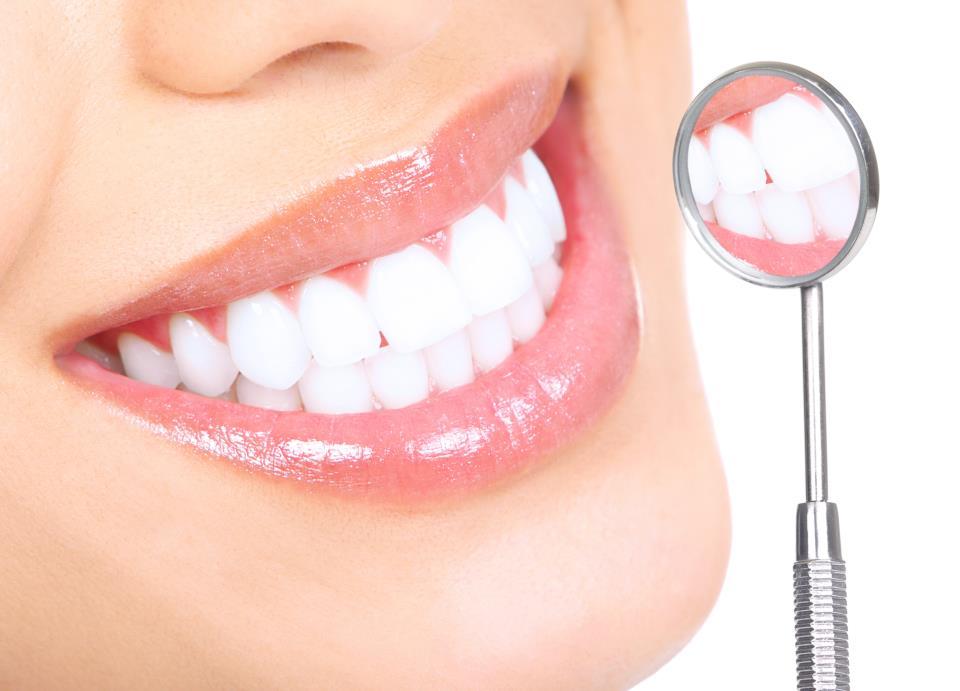 Blanqueamiento Dental_Lanzaroten (2)